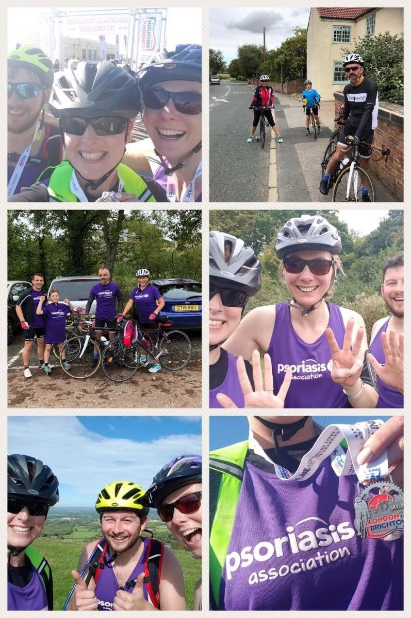 Raising money at LEO Pharma London to Brighton for psoriasis association